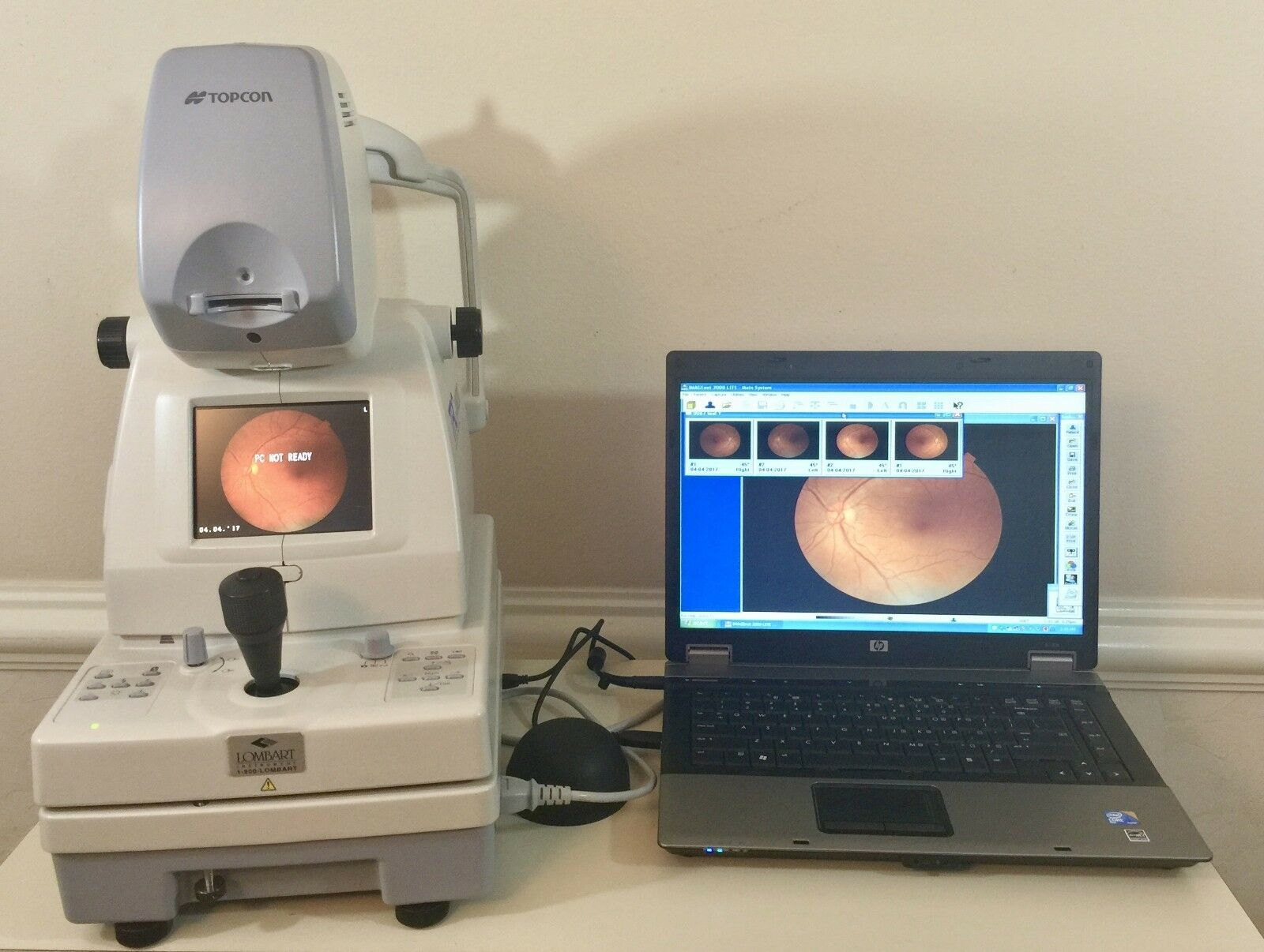 Topcon TRC-NW200 Digital Fundus Camera with laptop and Imagenet 2000 lite.