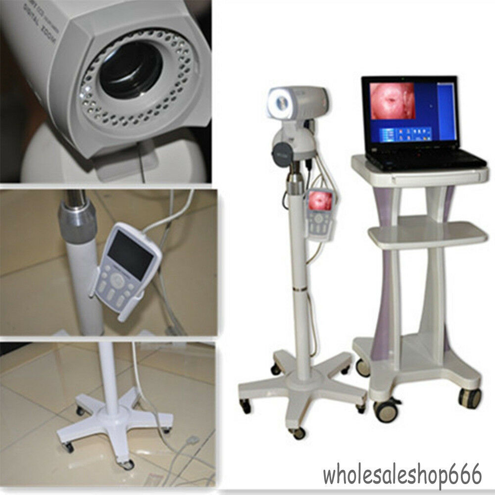 SONY Camera 830,000 Pixels CCD + Digital Video Electronic Colposcope Healthcare
