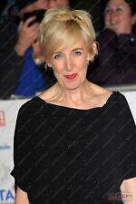 Julie Hesmondhalgh :  English TV Actress,  Hayley Cropper in Coronation Street