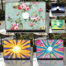 """Abstract Skin Sticker Cover Decal Protector for MacBook Pro 13.3 """" Laptop"""