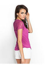 NWT GUESS Lace Back Boyfriend Tee T Shirt Top Scoop neck Fuchsia Pink XS 1 2 3