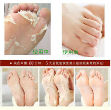 5pair=10pcs Baby Feet Skin Smooth Exfoliating Foot Mask Foot Care Mask Foot Care
