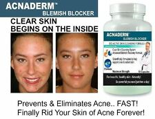 Acne Pills Clear Skin Complexion Spots Scars Treatment Cleanser Detox Tablets #1
