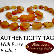 (Oval Beads) RAW Baltic Amber Baby Teething NECKLACE Raw Amber For Max Effect