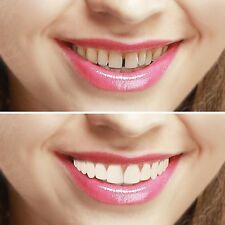 Imako Cosmetic Teeth Cover, Gappy 2 Happy. Smile in a Box. Hollywood Bling.