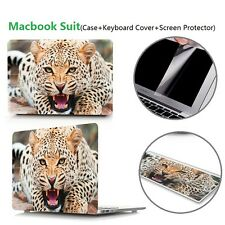 """Leopard MacBook Case Air Pro 11""""13""""+ Keyboard Cover+Clear Screen Protector"""