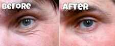 instant Facelift flawless younger skin dark eye bags fine lines crows feet serum