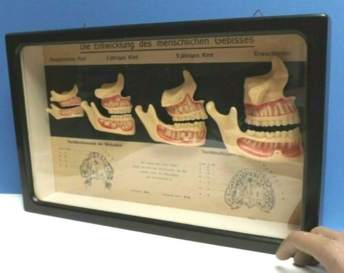 Teeth & Jaws  [ Wax Models ] Human Anatomy [ Berlin ] Tooth Development