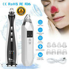 All in 1 Electric Blackhead Remover Face Skin Pore Cleaner Vacuum Acne Cleanser £20.69 GBP on eBay