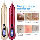 Electric LCD Portable Laser Freckle Warts Dot Mole Dark Spot Tattoo Removal Pen#