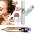 Laser Mole Tattoo Dark Spot Acne Removal Blue Light Treatment Freckle Pen Device image