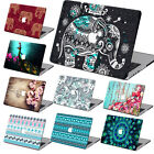 """Paisley Flower Digital Painting Hard Case for Macbook Air Pro11""""13""""15""""+Free Gift"""