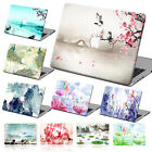 """Drawing Painted Hard Case Cover+KB+SP For Macbook Pro Air 11""""13""""15"""" Retina 12""""ZP"""