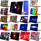 "Painted Hard Case key Cover skin for laptop Macbook Pro 13""15""Retina Air 11""13"""