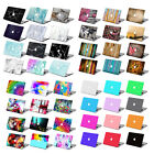 "Rubberized Painted Hard Laptop Case Cover for Macbook Pro Air 11""13""15""+Keyboard"