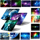 "Special Pattern Printing Hard Rubberized Case For Macbook Pro Air 11 13""15"" 12''"