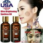 Ultra Brightening Spotless Oil Dark Spot Removal Natural Oil Skin Lightening US $7.7 USD on eBay