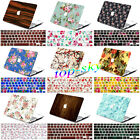 Decal Silicon Keyboard Cover+Hard Shell Laptop Case for Macbook Air/Pro 11/13/15