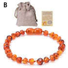 Baltic Amber Bracelet Anklet Raw Baby Kids Teeth Wristband Natural Jewelry Gifts