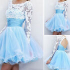 WB Lady Short Prom Evening Dress Lace Party Ball Gowns Girls Usual Dress US07