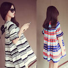 Women's Striped Dress Loose Summer Shirt Dress Short Sleeve Beautiful Popular