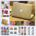 "Rubberized Matt Metallic Hard Case Cover Skin for MacBook 12"" Air Pro 11"" 13""15"""