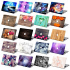 "Cute Hard Painting Case For Macbook Pro Air Retina 13""15""+ US/EU Keyboard Cover"