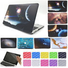 "3in1 Artistic Printing Anti-Shock Matte Hard Case for MacBook AIR PRO 11"" 13""15"""
