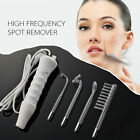 Spot Remover High Frequency Facial Machine Skin Care Beauty Device 4 Gla