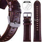 Retro Leather Watch Strap Band for Fossil Smart Watch 18 20 22mm Quick Release  image