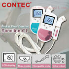 CE&FDA ,Pocket Fetal Doppler ,Baby Heart Monitor,3MHZ or 2MHz