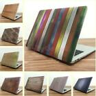 """Wood Grain Styles Hard Case Shell for Macbook Pro 13""""15"""" Retina Air 11""""12"""""""