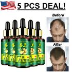 ReGrow 7 Day Ginger Germinal Hair Growth Serum Hairdressing Oil Loss Treatements $6.59 USD on eBay