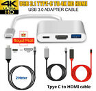 Type C to HDMI HDTV TV Adapter Cable USB Cable for Huawei Samsung Macbook HTC UK