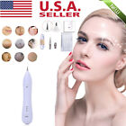 US!Laser Freckle Removal Machine Skin Mole Dark Spot Face Wart Tag Remover Pen on eBay