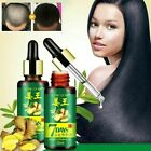 7 Days Hair Growth Essential Oil Loss Natural Ginger Ginseng Regrowth Serum $7.23 USD on eBay