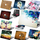 "Cool Pattern Print Hard Case Cover for Macbook Pro 13""15""Retina Air 13""11""12"""