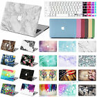 Printed/Rubberized Hard Laptop Case Keyboard Cover for Macbook PRO /AIR 11 13 15