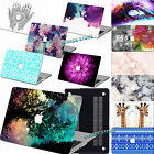 "Laptop Accessory Rubberized Hard Case Shell +KB For Macbook Air 11""12"" Pro 13""15"