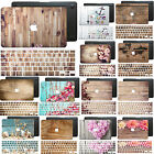 Wood Skin Painting Hard Rubberized Case +Decal Keyboard Cover for Macbook Laptop