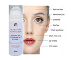 RETINOL 3% 7.5MioIU HYALURONIC ACID VITAMIN E & A  FACE CREAM Moisturizer SERUM