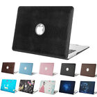 Mosiso Cover Case for Macbook Air 13 Pro 13.3 2014 2015 + Silicone KB cover