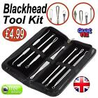 Blackhead Tool Spot Comedone Extractor Remover Tool Kit Set uk 1 or 7 pcs