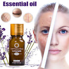 10/30ml Ultra Brightening Spotless Oil Skin Care Pure Natural Herb Remove Ance
