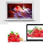 HD Clear Screen Protector Cover Skin for Macbook Air Pro 11 12 13 15 inch