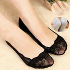Chic Women's Low Cut Lace Socks Non-slip Silicone Ankle Slippers Antiskid Liner