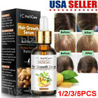 Regrow 7 Day Ginger Germinal Hair Growth Serum Hairdressing Oil Loss Treatment F
