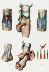ML17 Vintage 1800's Medical Bloodletting Position Surgical Poster Re-Print A2/A3