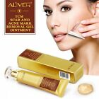 TCM Pimple Scar and Acne Mark Spots Removal Gel Ointment Skin Blemish Cream US