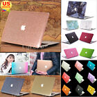 """Glitter Bling Pattern Silk Leather Marble Matte Case for MacBook Air Pro 11"""" 13"""""""